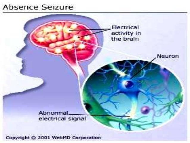 CauzePrintre principalele cauze ale epilepsiei, se numără: Traumatismele craniene; Tumorile și infecțiile cerebrale; Ac...