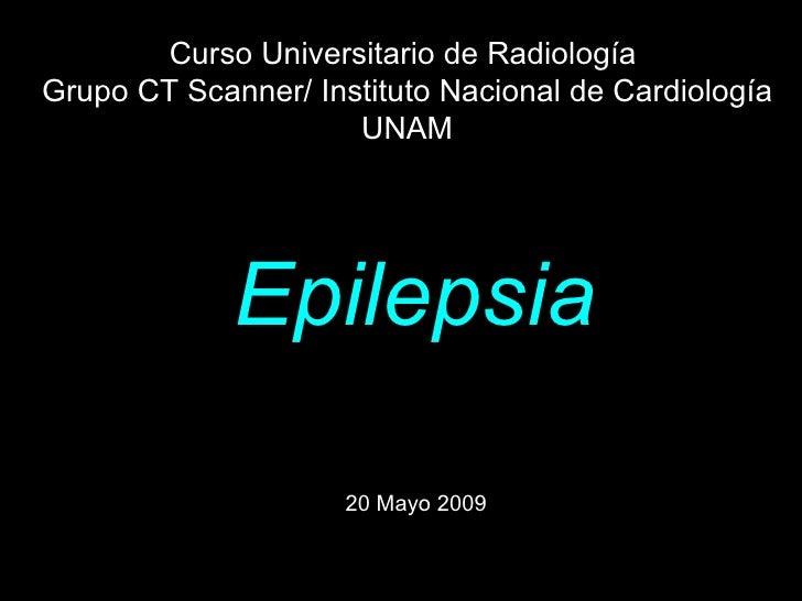 Epilepsia 20 Mayo 2009   Curso Universitario de Radiología  Grupo CT Scanner/ Instituto Nacional de Cardiología UNAM