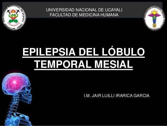 EPILEPSIA DEL LÓBULO TEMPORAL MESIAL UNIVERSIDAD NACIONAL DE UCAYALI FACULTAD DE MEDICINA HUMANA I.M. JAIR LUILLI IRARICA ...