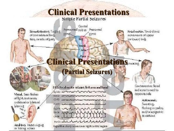 Clinical Presentations <ul><li>Definition: </li></ul>Clinical Presentations ( Partial Seizures)