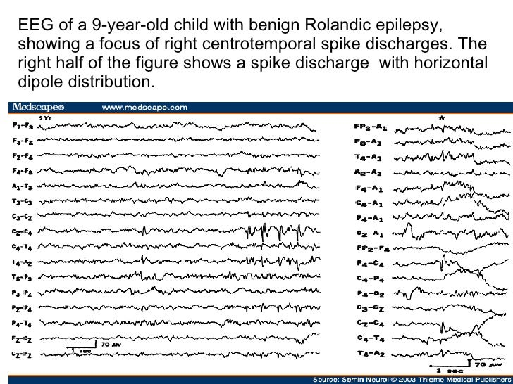 New light shed on mechanisms of paediatric epilepsy