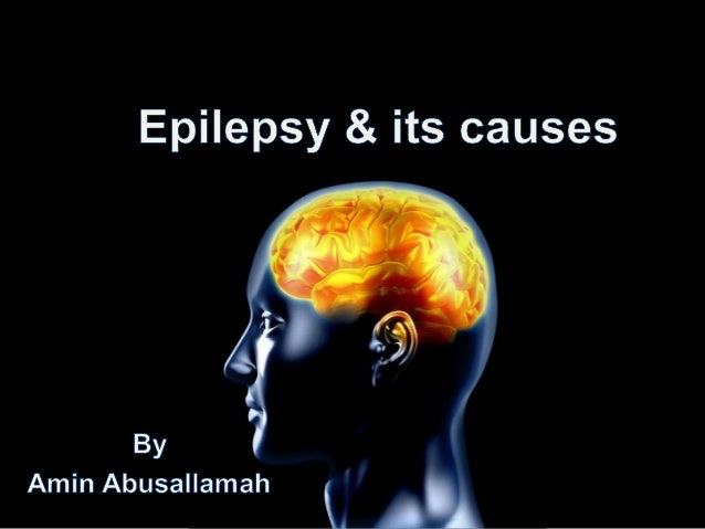 Introduction• Prevalence of epilepsy is 5-10 /1000 of  people.• Most common neurological diseases.• Epilepsy can strike at...