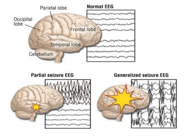 epilepsy, Skeleton