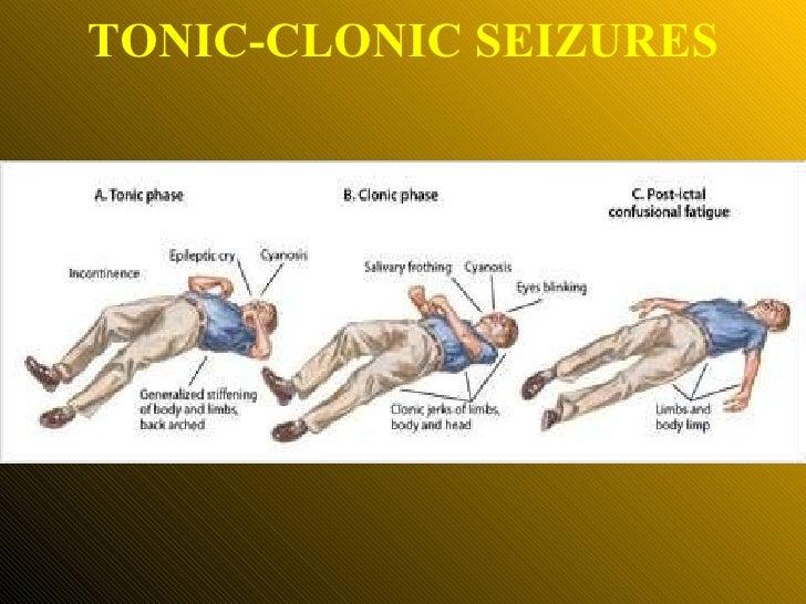 TONIC-CLONIC SEIZURES