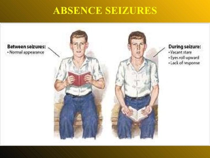 ABSENCE SEIZURES