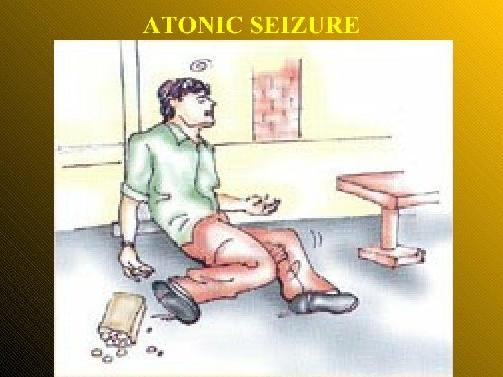 ATONIC SEIZURE