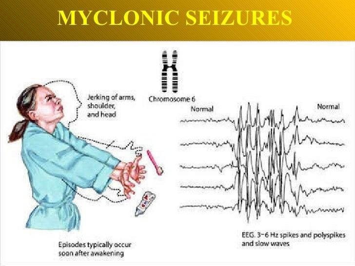 MYCLONIC SEIZURES