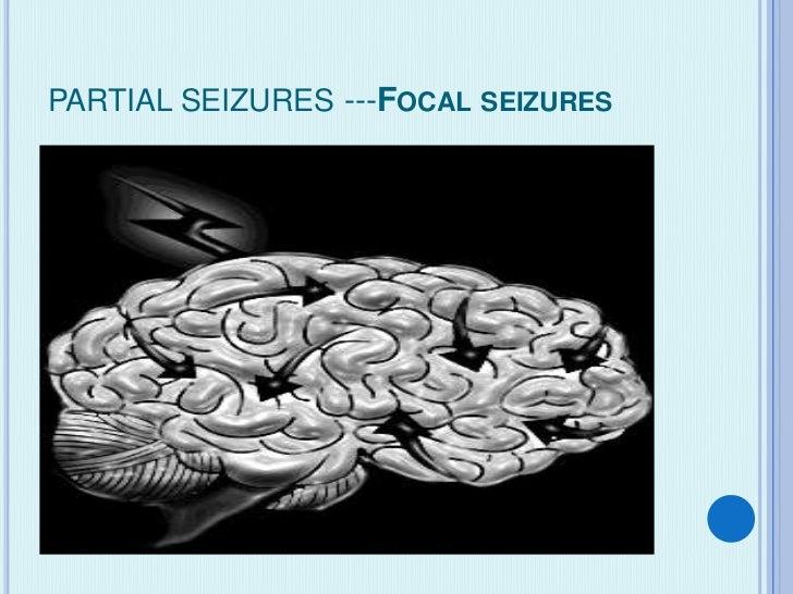 PARTIAL SEIZURES ---FOCAL SEIZURES