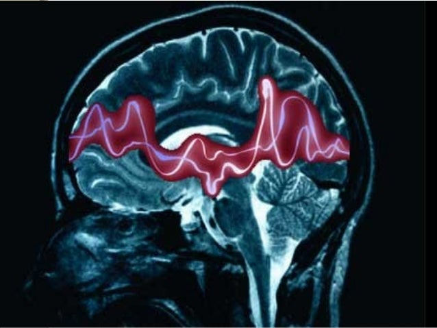 EPILEPSY (SEIZURE DISORDER)EPILEPSY (SEIZURE DISORDER) •Epilepsy is a disorder of brain in which a fit occurs because of a...