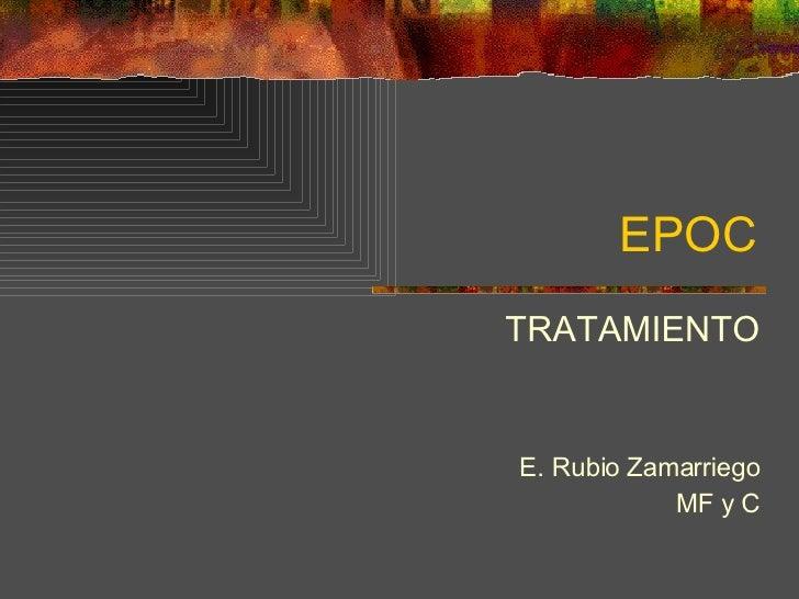EPOC TRATAMIENTO E. Rubio Zamarriego MF y C
