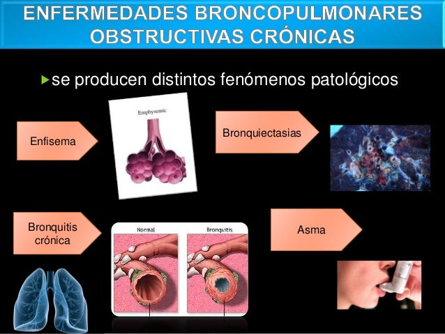 Epoc enfisema bronquitis crónica,bronquiectasia y asma Slide 3