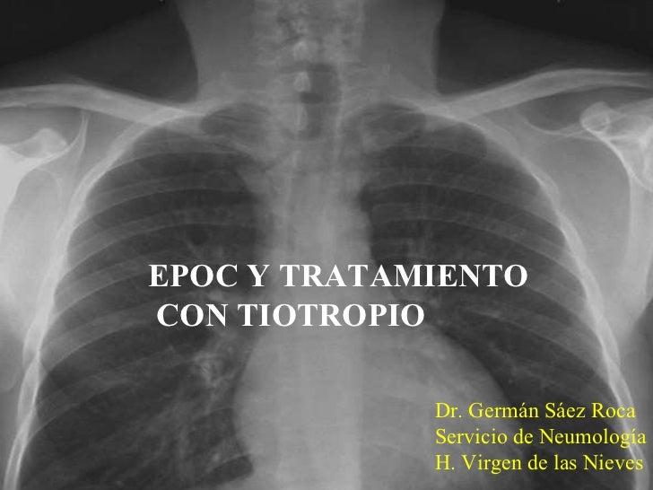 EPOC Y TRATAMIENTO CON TIOTROPIO Dr. Germán Sáez Roca Servicio de Neumología H. Virgen de las Nieves