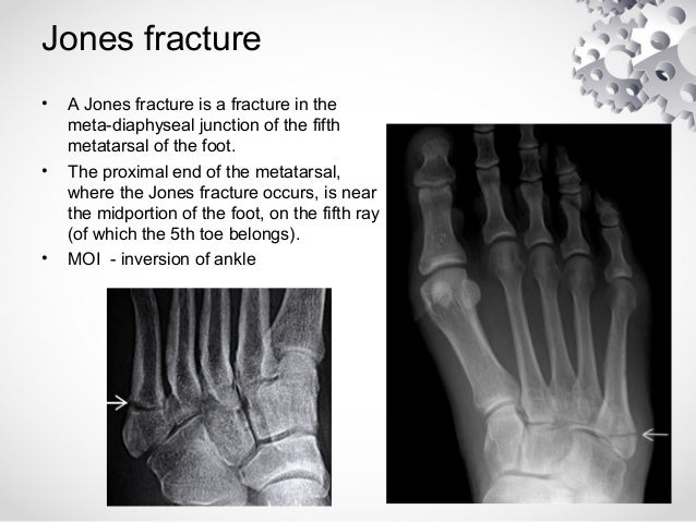 eponymous fractures