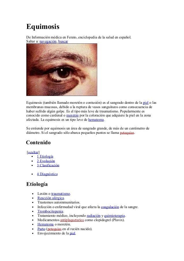 EquimosisDe Información médica en Ferato, enciclopedia de la salud en español.Saltar a: navegación, buscarEquimosis (tambi...