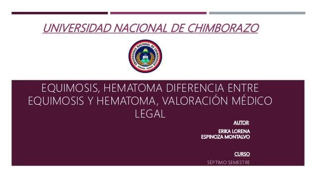UNIVERSIDAD NACIONAL DE CHIMBORAZO EQUIMOSIS, HEMATOMA DIFERENCIA ENTRE EQUIMOSIS Y HEMATOMA, VALORACIÓN MÉDICO LEGAL AUTO...