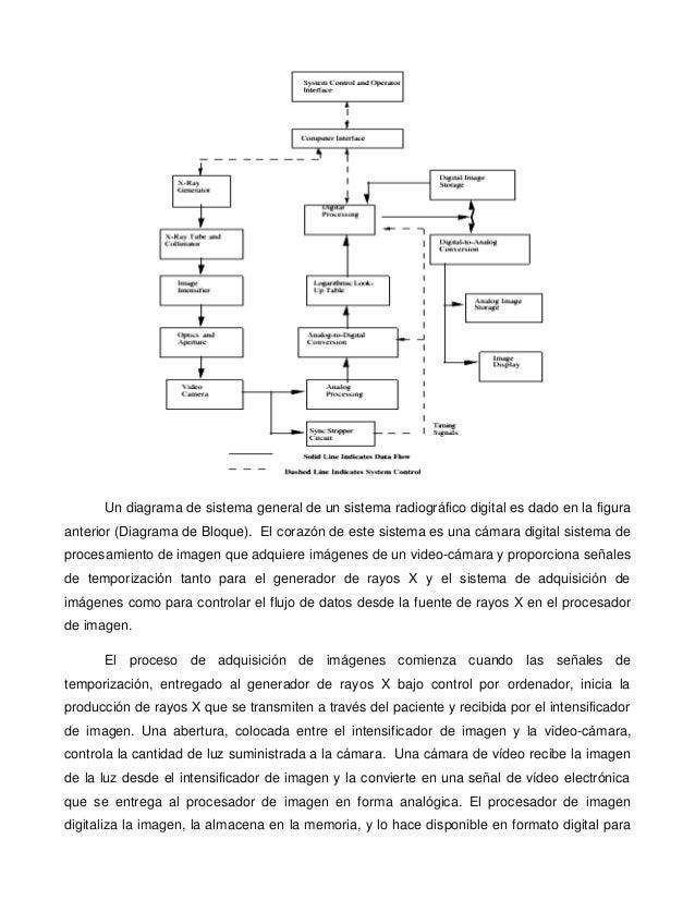 Excelente Diagrama De Sistema Linfático Cresta - Imágenes de ...