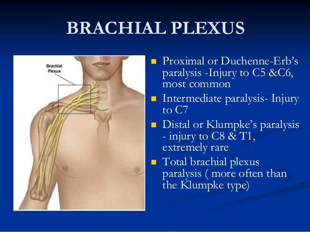 ... Brachial Plexus Palsy; 3.