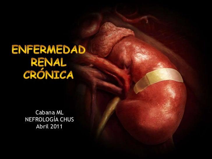 enfermedad renal crónica<br />Cabana ML<br />NEFROLOGÍA CHUS<br />Abril 2011<br />