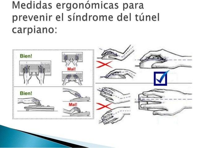 Ergonomía y síndrome del túnel carpiano (stc