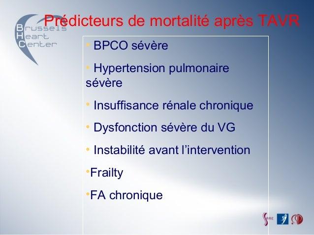 Dr Eric Stoupel: Pour quel patient peut-on prévoir un..