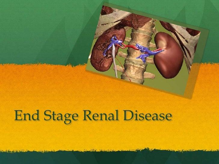 End Stage Renal Disease<br />