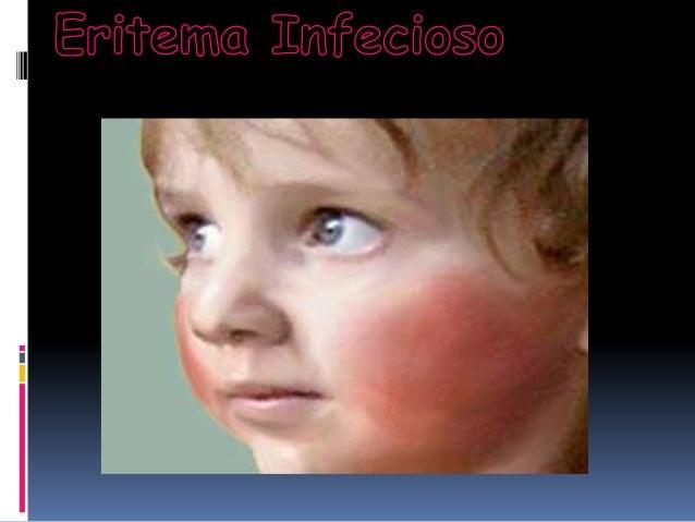 Causas O Eritema Infecioso é causado por um vírus (Parlo víruse humano B   19), transmitido por secreções das vias respir...