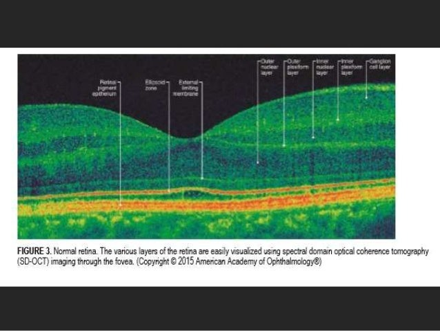 Epiretinal Membrane And Vitreomacula Traction In Updates By Panit Che