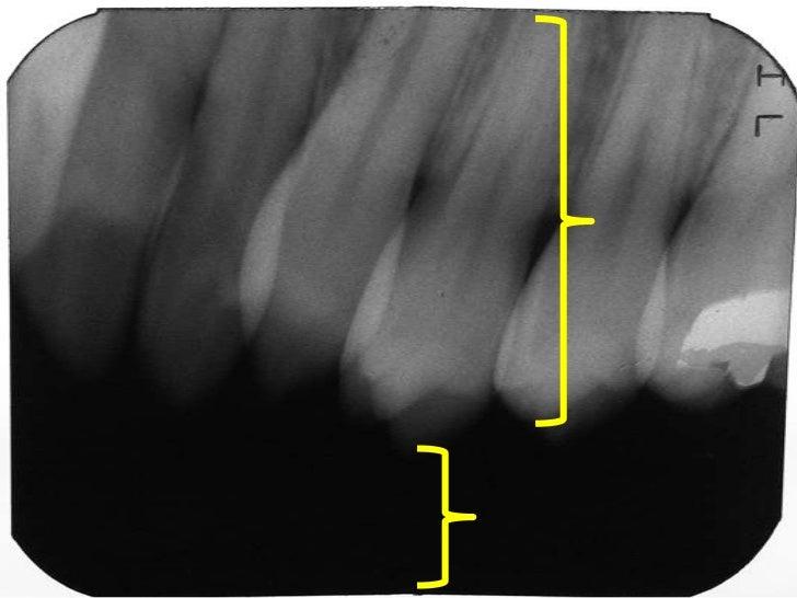Errores en la toma de radiografias intraorales