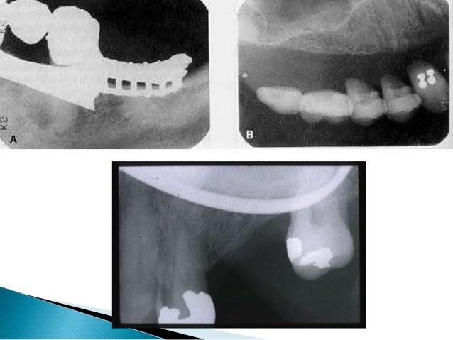 N Ray Radiography Errors of dental radio...