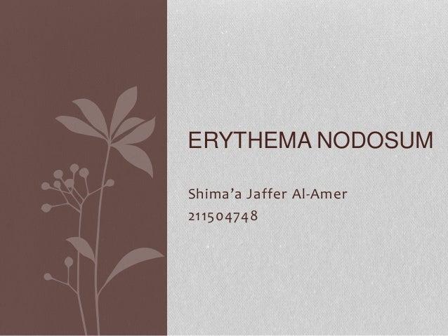 Shima'a Jaffer Al-Amer 211504748 ERYTHEMA NODOSUM