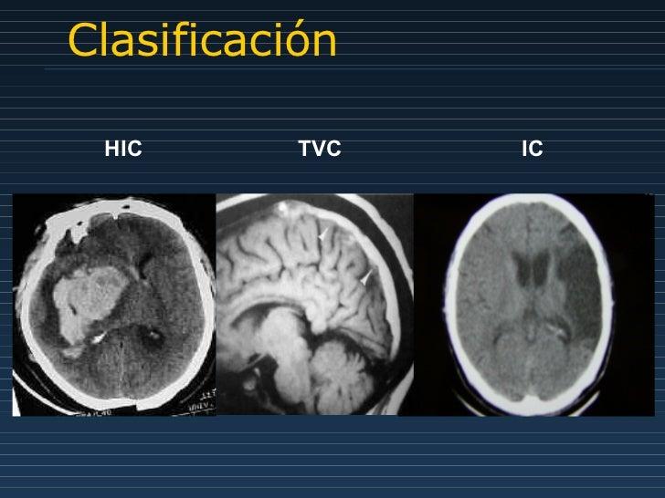 Clasificación HIC  TVC    IC