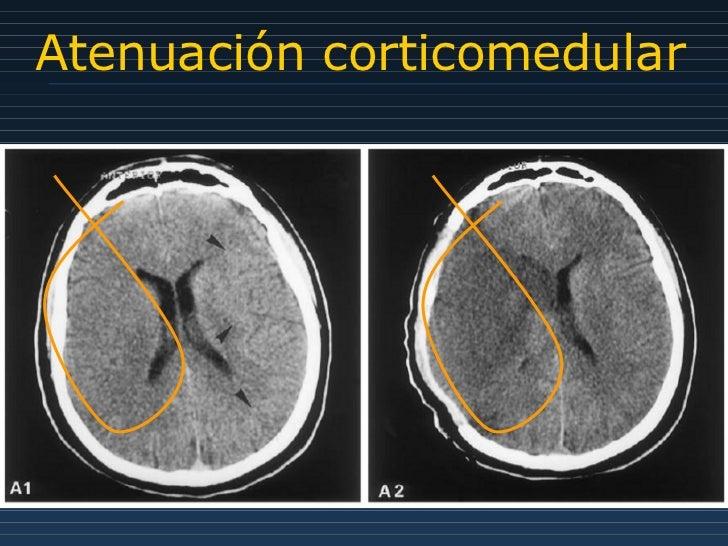Atenuación corticomedular
