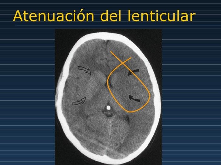 Atenuación del lenticular