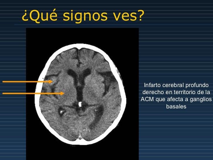 ¿Qué signos ves? Infarto cerebral profundo derecho en territorio de la ACM que afecta a ganglios basales