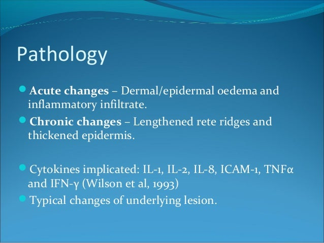 Pathology Acute changes – Dermal/epidermal oedema and inflammatory infiltrate. Chronic changes – Lengthened rete ridges ...
