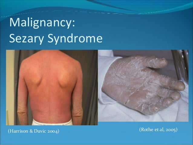 Malignancy: Sezary Syndrome (Rothe et al, 2005)(Harrison & Duvic 2004)
