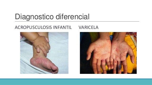 Los sanatorios para los niños desde 2 años atopichesky la dermatitis