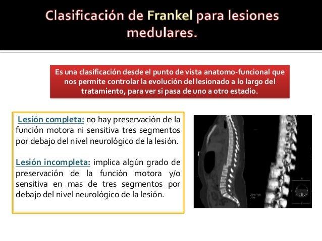 Lesión completa: no hay preservación de la función motora ni sensitiva tres segmentos por debajo del nivel neurológico de ...