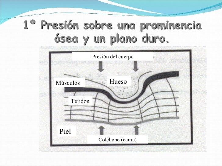 Piel Músculos Tejidos Colchone (cama) Hueso Presión del cuerpo