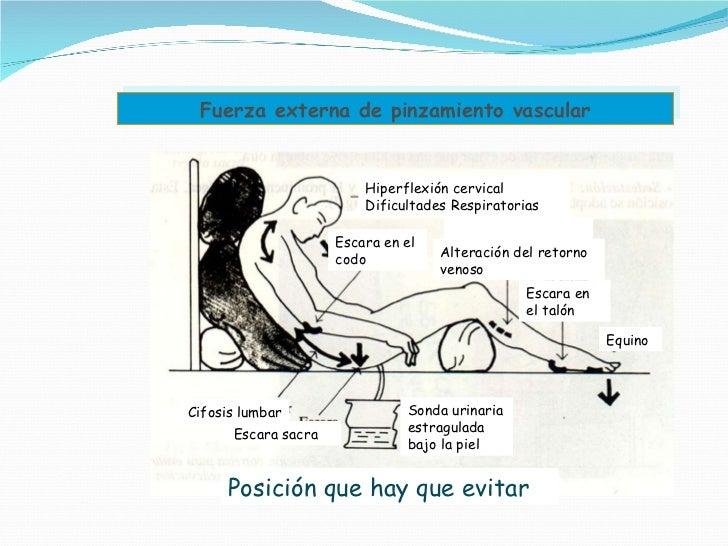 Fuerza externa de pinzamiento vascular Hiperflexión cervical Dificultades Respiratorias Escara en el codo Alteración del r...