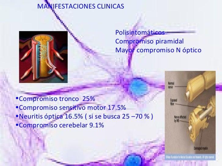 MANIFESTACIONES CLINICAS Polisintomáticos Compromiso piramidal Mayor compromiso N óptico <ul><li>Compromiso tronco  25% </...