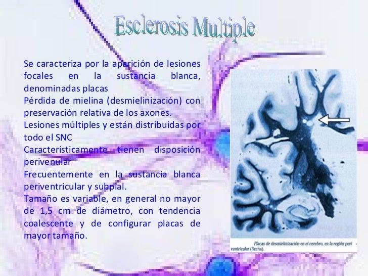 Esclerosis Multiple Se caracteriza por la aparición de lesiones focales en la sustancia blanca, denominadas placas  Pérdid...
