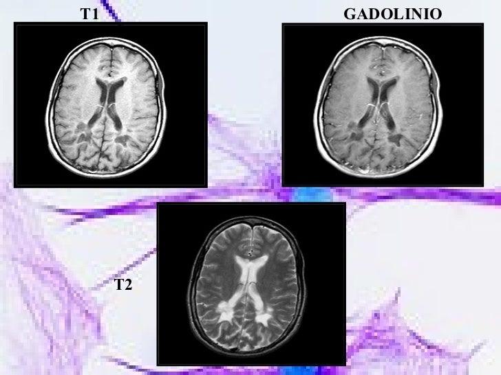 GADOLINIO T1 T2