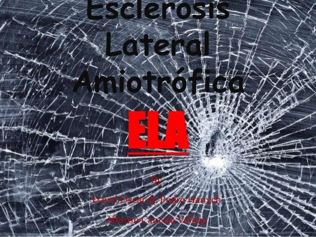 Esclerosis Lateral Amiotrófica By David Oscar de Pedro Hanych Alfonso CancelaVallejo ELA