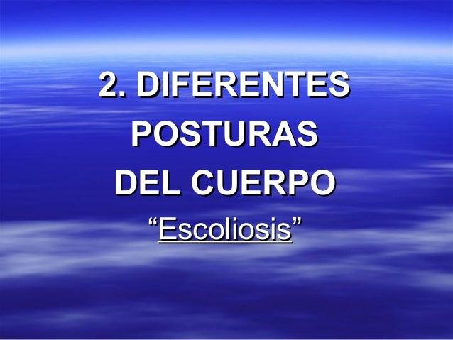 "2. DIFERENTES2. DIFERENTES POSTURASPOSTURAS DEL CUERPODEL CUERPO """"EscoliosisEscoliosis"""""