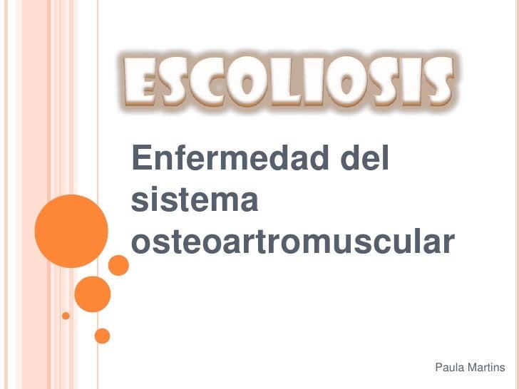 Escoliosis<br />Enfermedad del sistema osteoartromuscular<br />Paula Martins<br />