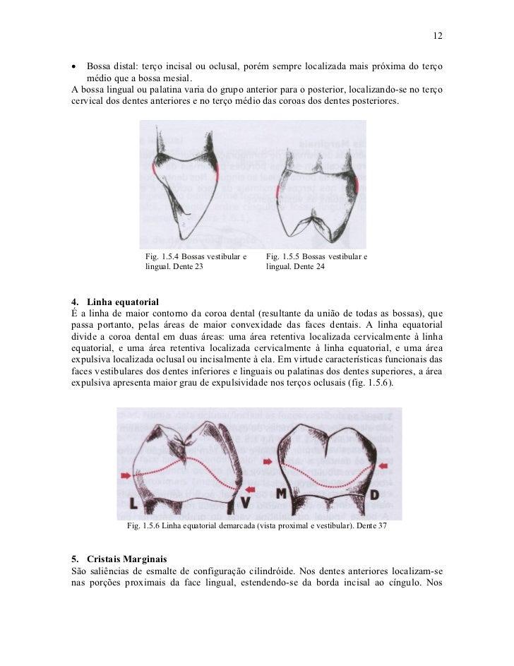 12•   Bossa distal: terço incisal ou oclusal, porém sempre localizada mais próxima do terço    médio que a bossa mesial.A ...