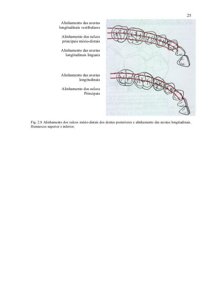 25                    Alinhamento das arestas                   longitudinais vestibulares                    Alinhamento ...