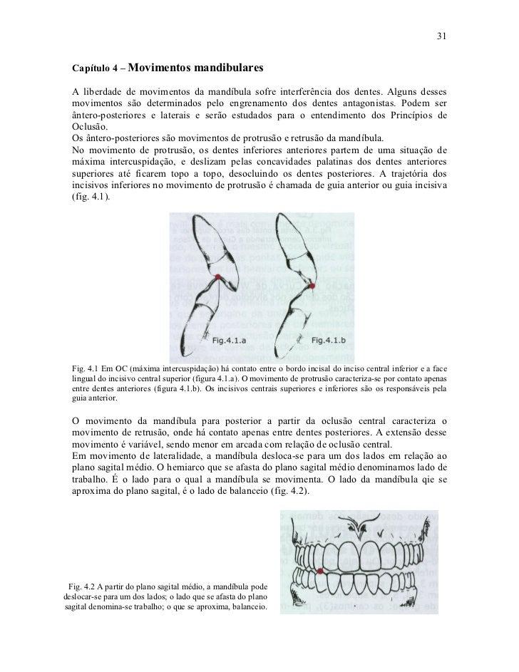 31  Capítulo 4 – Movimentos mandibulares  A liberdade de movimentos da mandíbula sofre interferência dos dentes. Alguns de...