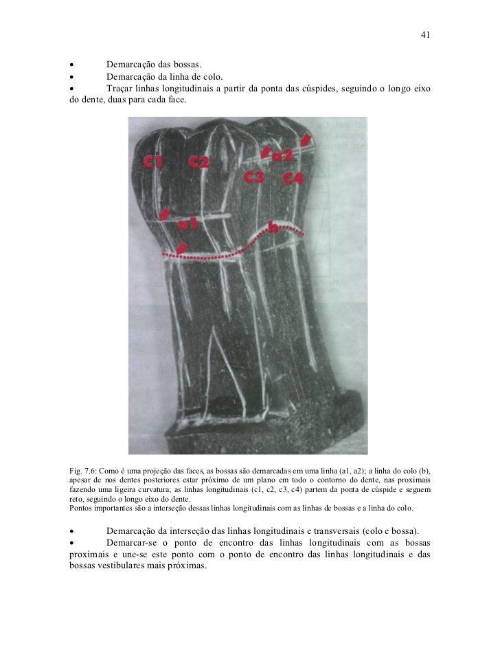 41•        Demarcação das bossas.•        Demarcação da linha de colo.•        Traçar linhas longitudinais a partir da pon...